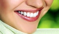 Mitchelton: Invisalign® i7 Package