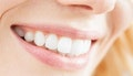 Broadbeach: In-Chair Teeth Whitening Treatment
