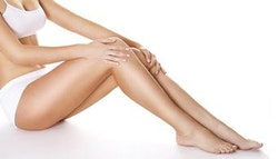 Stafford: Spider Vein Removal Treatment!